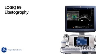 Application Elastography sur le LOGIQ E9