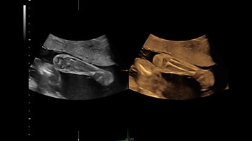 Volume Contrast Imaging-A (VCI-A) of the fetal arm