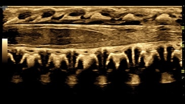Neonatal Spine, ML6-15-D