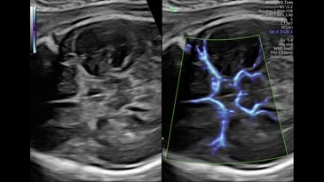 Circle of Willis shown with SlowflowHD in Dual Display