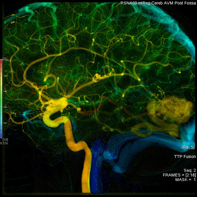 egories-do-not-clone-advanced-visualization-applications-angioviz-aw-angioviz-overview_jpg
