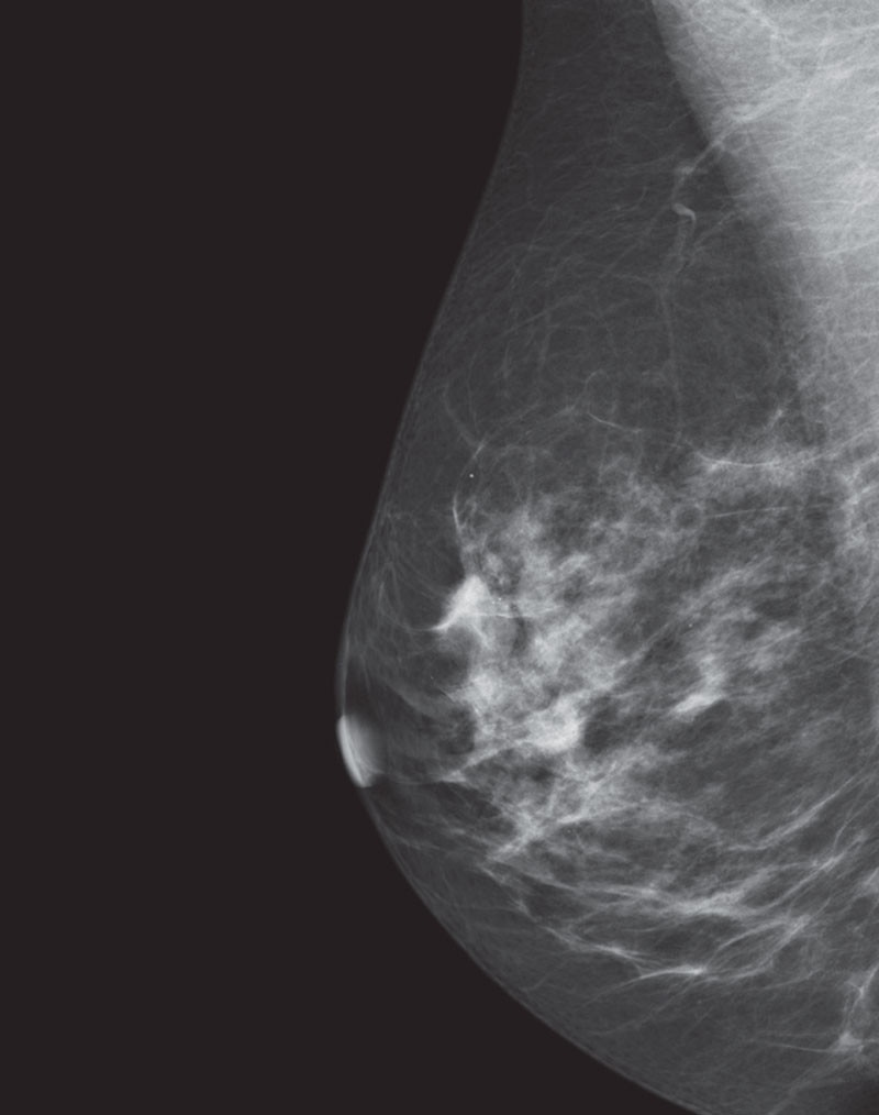 es-mammography-mammography-new-seno-claire-senoclaire_breast-imaging-sensitivity-case1.jpg