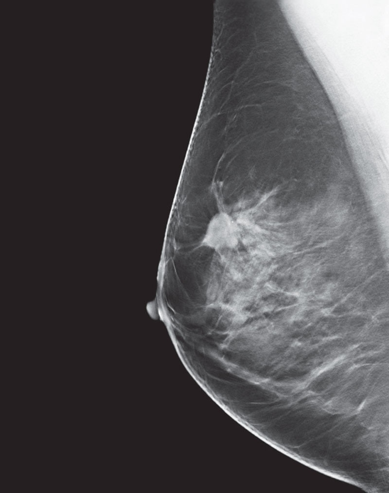 es-mammography-mammography-new-seno-claire-senoclaire_breast-imaging-sensitivity-case2.jpg